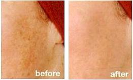 IEE_Uneven Pigmentation Treatment